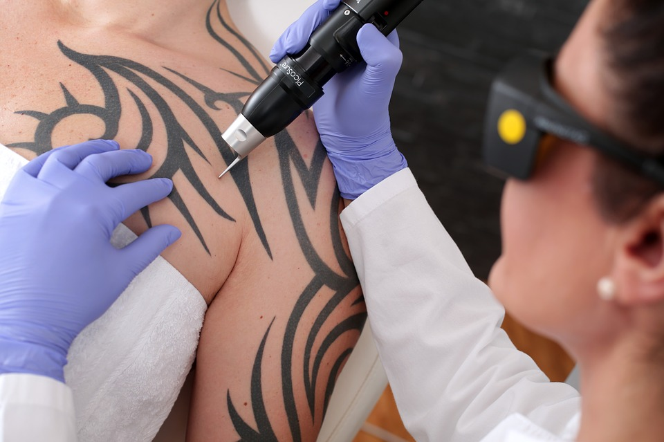 Laser Tattoo Removal Therapist course